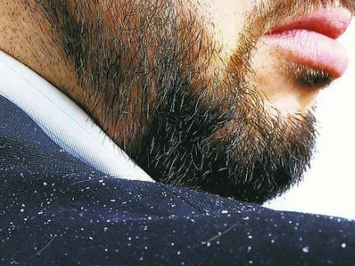 Beard Dandruff on Mans shoulder