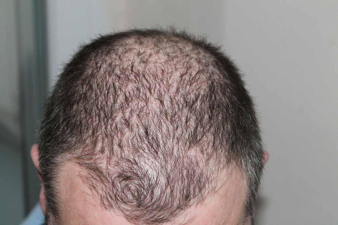 Thinning Hair men